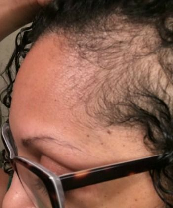 How to Use a Dermaroller on Your Edges + 6 More Tips to Help Grow Your Edges Back