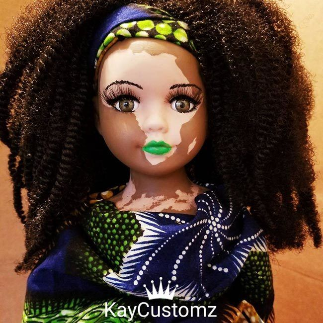 Vitiligo and Albino Dolls are Changing the Face of Beauty