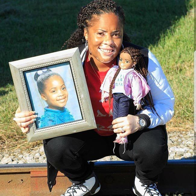 Motivational Speaker Tiffanie Wiley poses with her customized vitiligo doll