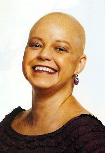 Noelle Smith after chemotherapy