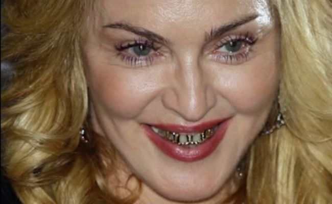 madonna gold teeth