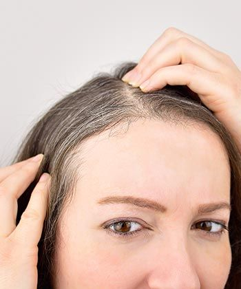 Top 5 Things You Need to Know About Premature Gray Hair
