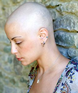6 Little Known (But Common) Causes of Alopecia