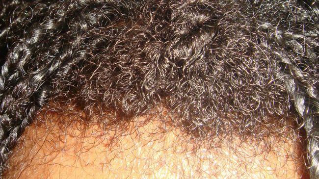 natural hair breakage versus growth