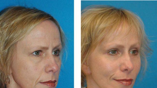 facial plastics hairline lift