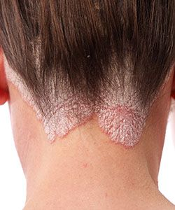 How to Deal with Scalp Psoriasis, According to The Hair Doctor
