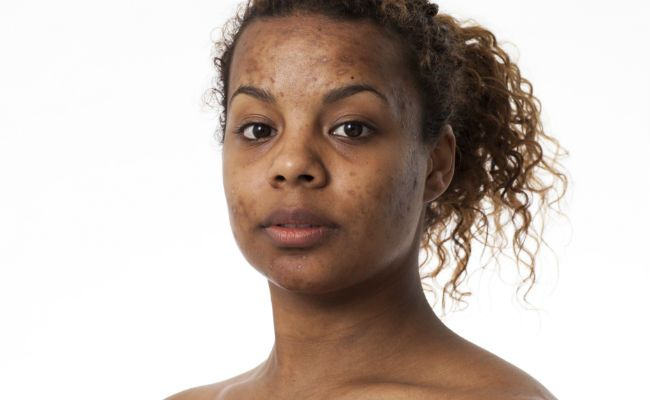 woman with acne scarred face