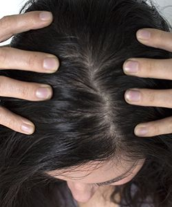 Does Too Much Shampoo Cause an Oilier Scalp?