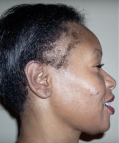 7 Ways to Grow Your Edges Back and Treat a Thinning Hairline