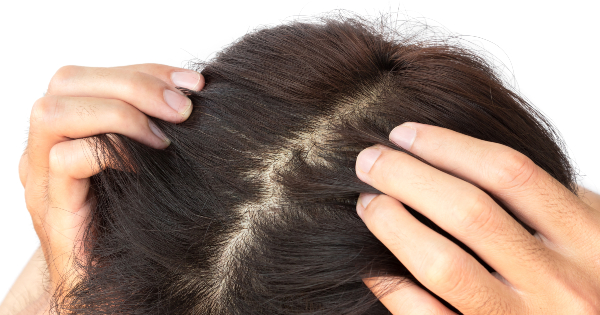 Does An Itchy Scalp Equal Hair Growth Naturallycurly