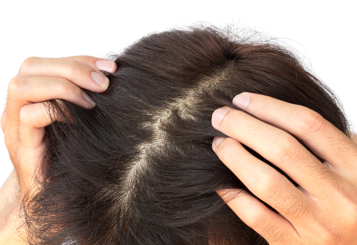 Does an Itchy Scalp Equal Hair Growth? | NaturallyCurly.com